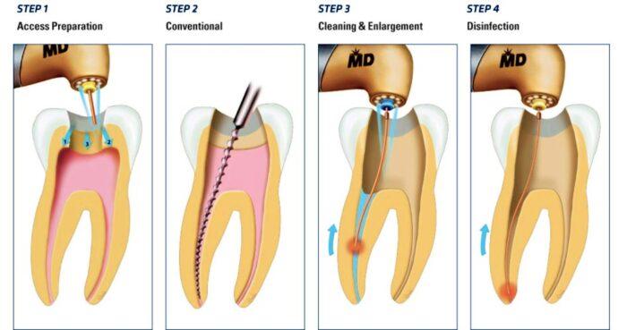 чистка зубных каналов